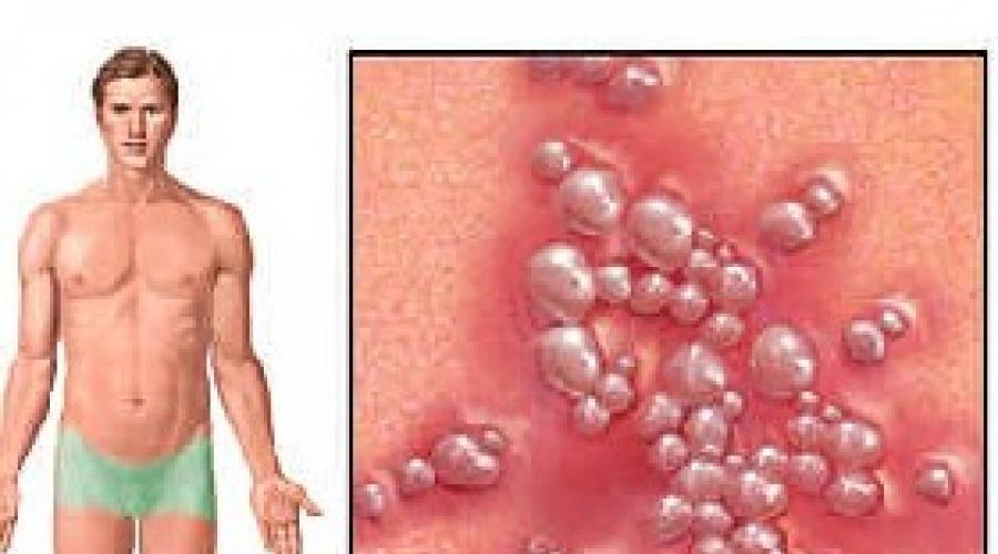 Вирусный простатит герпес простатит лечение скидка