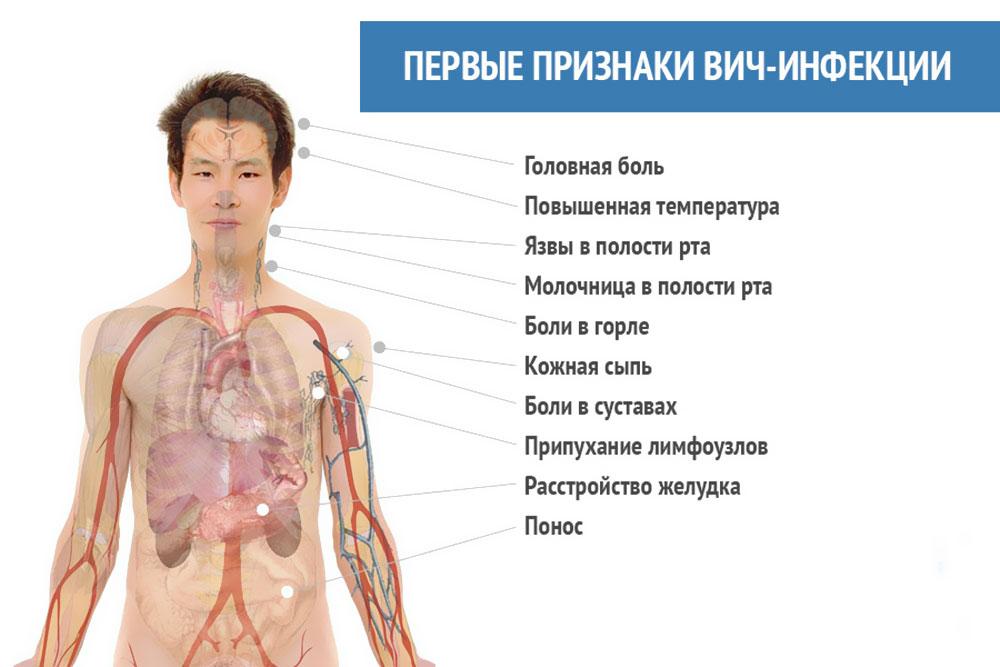 hiv symptom efter 1 år