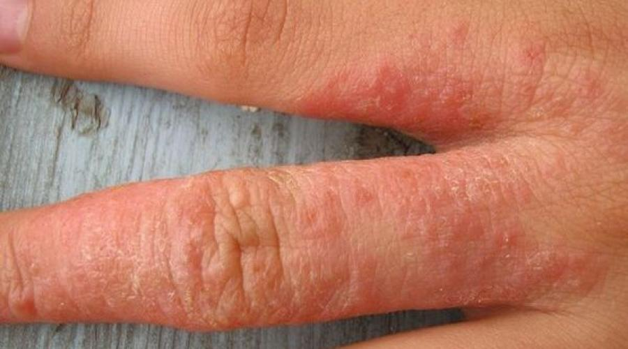 антибиотики против кожных заболеваний