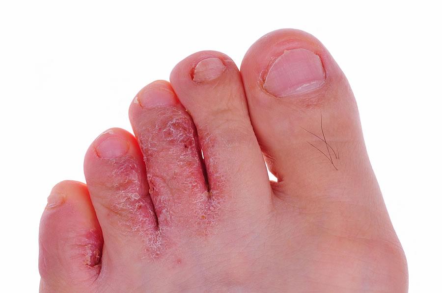 Сильно зудят ноги от грибка