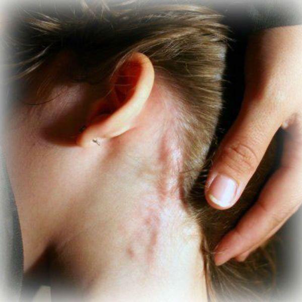 hiv symptom hos kvinnor