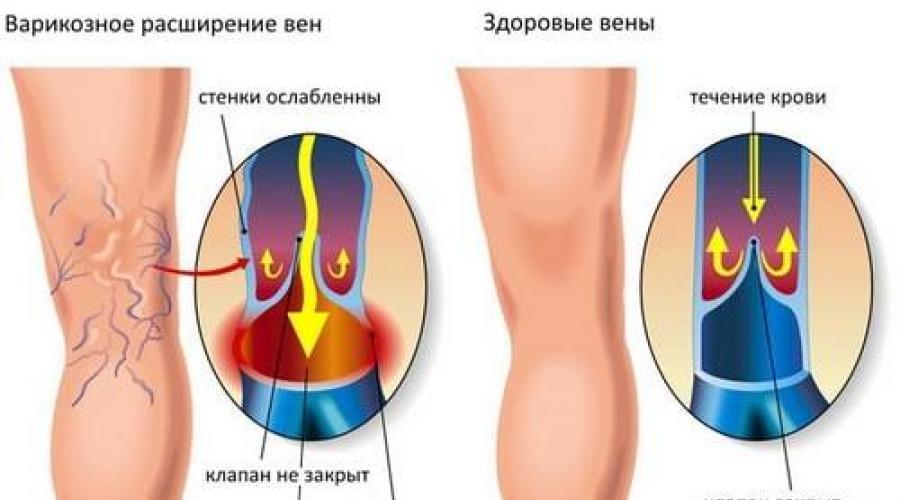 Если чешутся ноги внизу. Чешутся ноги в районе щиколотки — причины.