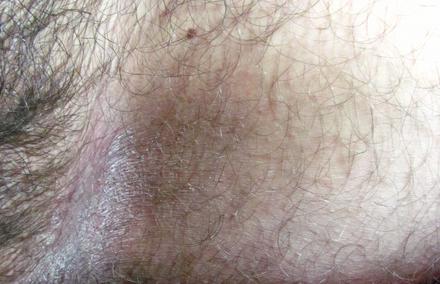 Неприятный запах в паху у мужчин лечение