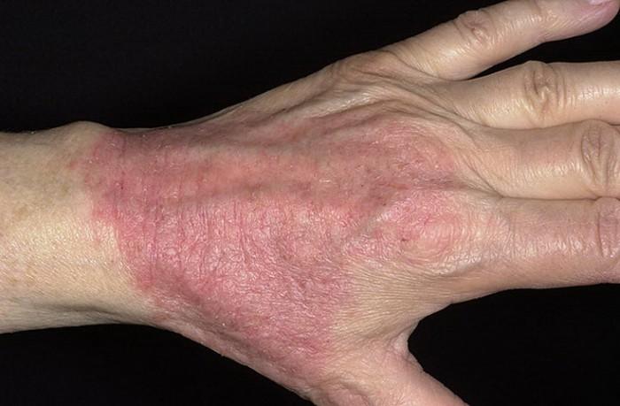 Сухость кожи отечность инфильтрация зуд возникает упорный достаточно стойкий форме