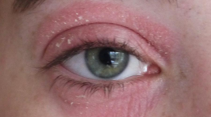 herpes i ögat bild