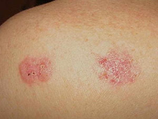 cancer i huden