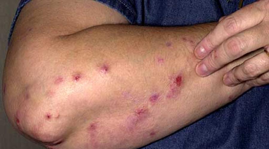 Зудящие дерматозы: лечение, описание симптомов и признаков, фото.