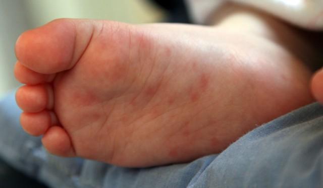 Красные ладони рук и чешутся. Зуд кожи ладоней и ступней, что это ...