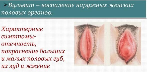 Почему во время секса опушают половые губы