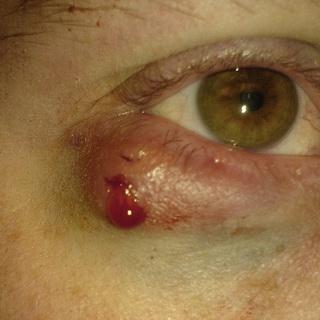 Болит глаз и внутри века мелкие пузырики. Появился внутренний ...