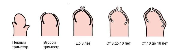 Полвой член головка должна быть открыта или закрыта
