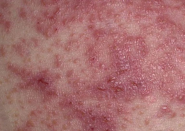 rings patch pityriasis eczema of s picture nhs herald fill conditions uk rosea pityriais the