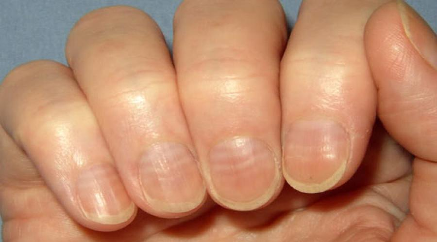 Why nails become bumpy. Determine the disease by nails