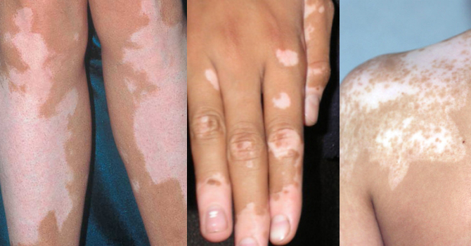аллергия под мышкой у ребенка фото