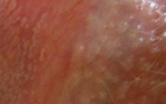 Белые точки на вагинальных губах